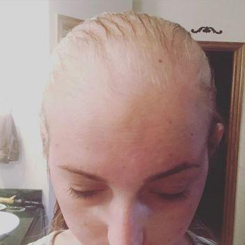 May 30 2016 Balding